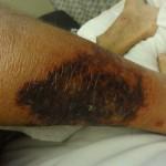 Skutek infekcji bakterii amazonskiej